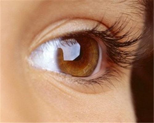 眼袋怎么治疗 杭州萧山黛雅整形医院做激光祛眼袋贵吗