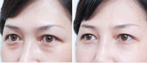 兰州芦蔓莉整形医院有好的眼部整形专家吗 做激光去眼袋得多少钱呢
