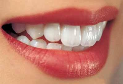 怎么改善大黄牙 北京合生口腔医院做烤瓷牙多少钱