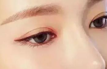 深圳阳光【眼部整形】埋线双眼皮手术 美眼效果超自然