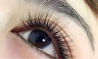 重庆重生毛发移植医院种植睫毛多少钱 适合哪些人呢