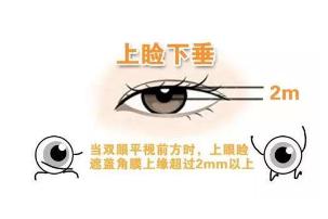 眼部整形 长沙爱思特整形医院刘智瑰做上眼睑下垂矫正贵吗