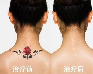祛纹身哪家好 娄底爱思特整形医院激光祛纹身伤皮肤吗