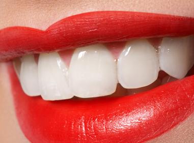 畸形牙矫正 武汉爱思特口腔医院牙齿矫正找明瑞芳专家