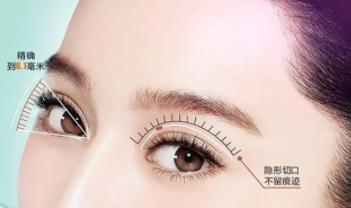 济南瑞丽整形医院做双眼皮修复贵吗 王东平教授在线预约