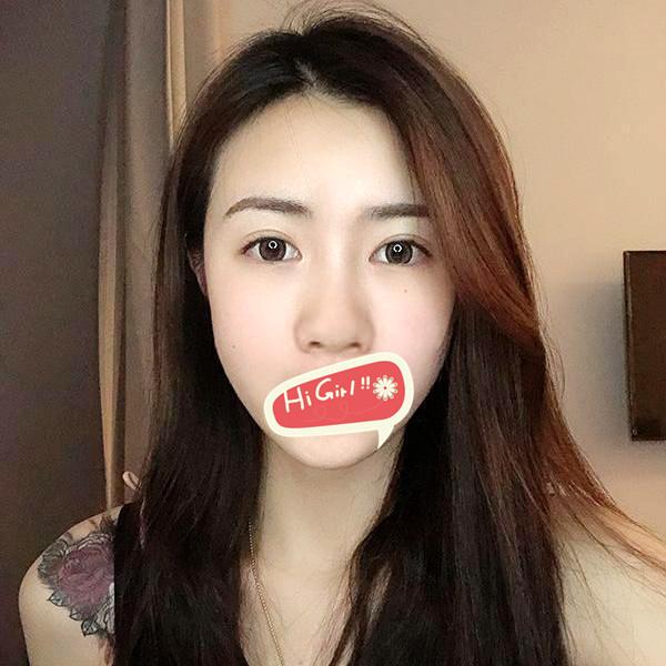 广州粤秀整形外科医院耳软骨隆鼻案例 真人实拍效果图
