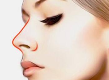 苏州温家岸医院【鼻部整形】鼻翼缩小 让你拥有精致美鼻