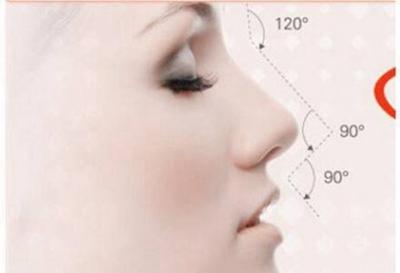 西安华京整形鼻部再造的效果真实吗 费用是多少