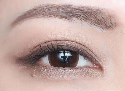 襄阳维多利亚整形医院做全切双眼皮需要多少钱 会不会留疤