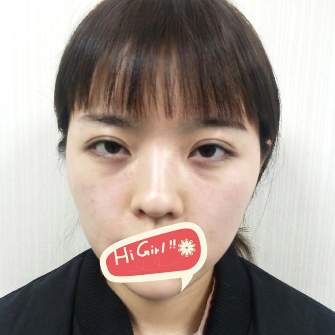 在天津维美美容医院做了假体隆鼻 高挺美鼻掌起了我的颜值