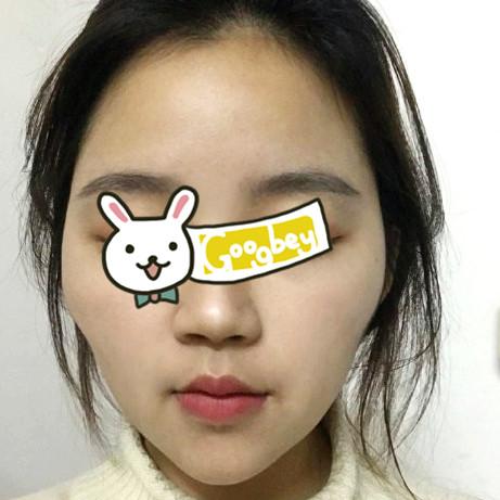 广州妍雅整形医院颧骨内推案例 终于拥有了属于自己的精致脸庞