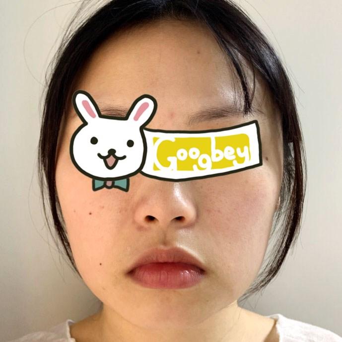 北京泰美丽格整形医院下颌角磨骨
