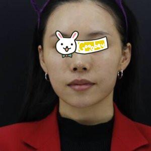 长沙罗曼丽整形医院光子嫩肤案例分享 皮肤白净细腻 年轻好几岁