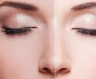 隆鼻专家李罡简介 深圳鹏爱整形科驼峰鼻整形价格预约优惠