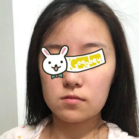 郑州悦美整形医院颧骨颧弓磨骨案例 脸型很流畅