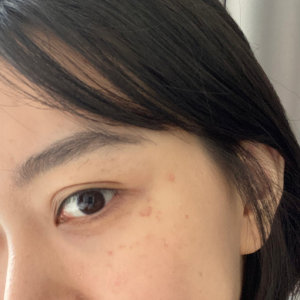 在郑州爱整形医院做的激光祛斑后一次就淡化了好多 真人案例图