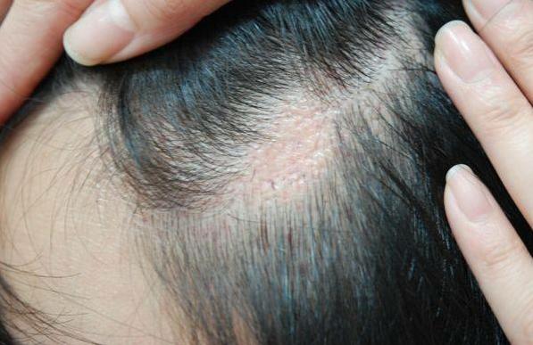 疤痕植发后多久能长出头发 长沙美莱植发成活率高吗