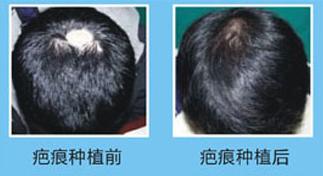 植发医院哪家好 疤痕植发技术有哪些