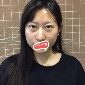 郑州至美国际整形医院热玛吉除皱案例 开启新人生 惊艳全场