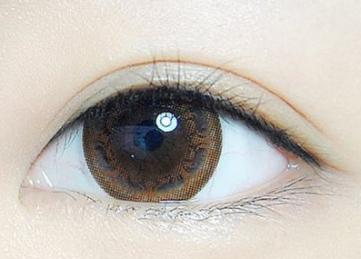 烟台洛神整形医院许川专家做埋线双眼皮 拯救我的小眼睛