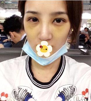 在北京薇琳整形美容医院做了隆鼻 牛专家就是牛
