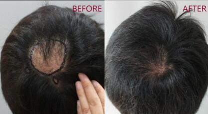 疤痕上可以植发吗 厦门碧莲盛疤痕植发前后对比图