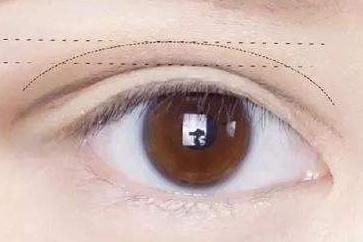 双眼皮失败了不要怕 上海艺星整形医院许炎龙来拯救你