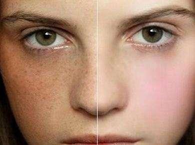 广西南宁梦想整形【激光祛斑】调Q全脸祛斑|雀斑|黄褐斑|晒斑 还你嫩白肌
