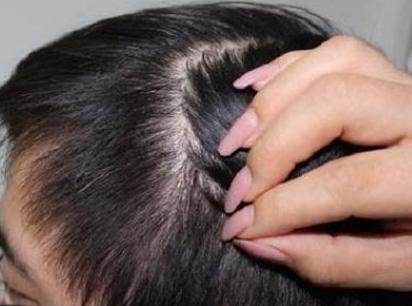 疤痕植发真的有效吗 北京植发比较好的医院是哪家