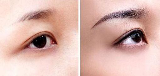 眉毛种植需要多少钱 东莞美立方医院专家有哪些
