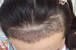 北京高新医院毛发移植科头发种植可以保持多久
