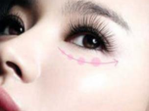玛丽亚解决眼部瑕疵 新疆华美国际整形医院激光祛眼袋价格