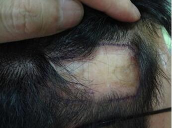 什么是疤痕植发 临沂瑞丽做疤痕植发需要多长时间