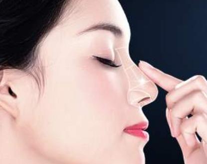 隆鼻整形专家 郑州美莱整形医院周蔚专注隆鼻修复多年