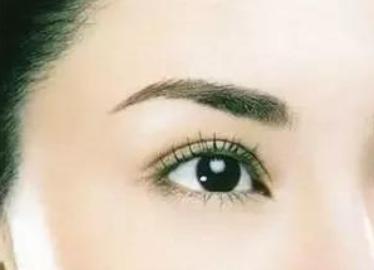 四川广安阿蓝整形医院双眼皮多久恢复自然 美丽百变
