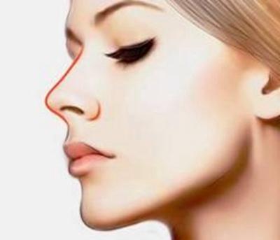 重庆莱森【假体隆鼻】改善塌鼻梁 提升侧颜值