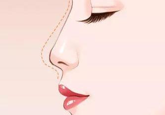重庆美莱整形医院 专家单磊鼻部再造手法细腻
