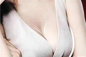 广州美莱医院【胸部整形】假体隆胸 塑造魔鬼身材