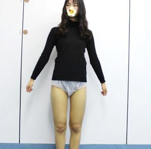 快速瘦腿妙招 上海丽宣医院大腿吸脂案例 整整瘦了7厘米
