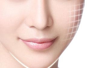 北京王磊整形医院激光美容科 28天淡化77%法令纹