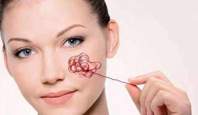 怎么去脸上红血丝 自贡西婵整形医院激光去红血丝的优势