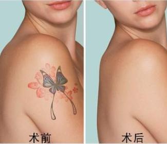 台州长青医院【激光洗纹身】无忧洗纹身 安全彻底