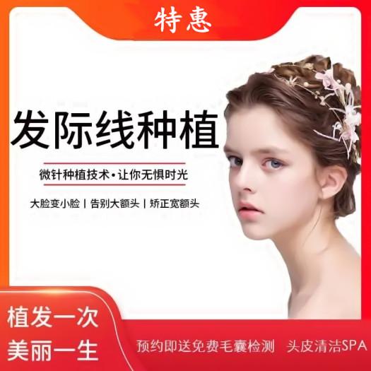 上海新生【发际线种植】修饰脸型 轻松拥有小v脸 气质美颜