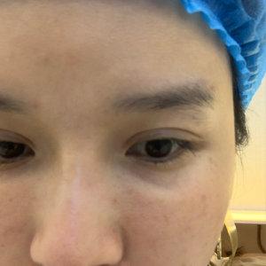 在北京京美整形医院胶原蛋白填充泪沟 去掉泪沟后让我回到了少女时代