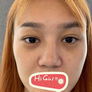 北京炫美整形医院鼻综合案例 歪塌鼻消失 让我实现了变美逆袭