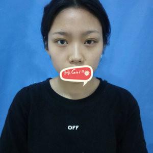 上海喜美美容医院假体隆鼻案例 从蒜头鼻到精致小翘鼻的全过程 附图
