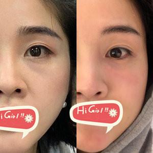深圳阳光整形医院玻尿酸填充泪沟案例 十天成就逆龄少女