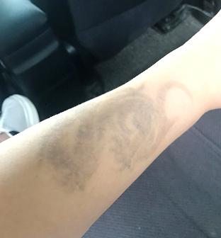 上海鲁南整形美容医院激光洗纹身效果分享 找回真正的我