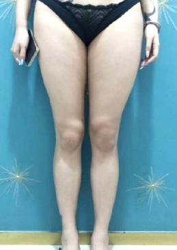深圳福华美容整形科孟晨曦吸脂案例 肤白貌美大长腿