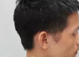 重庆好美厚森植发医院全新植发价格表 鬓角种植多少钱